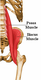 psoas-syndrome